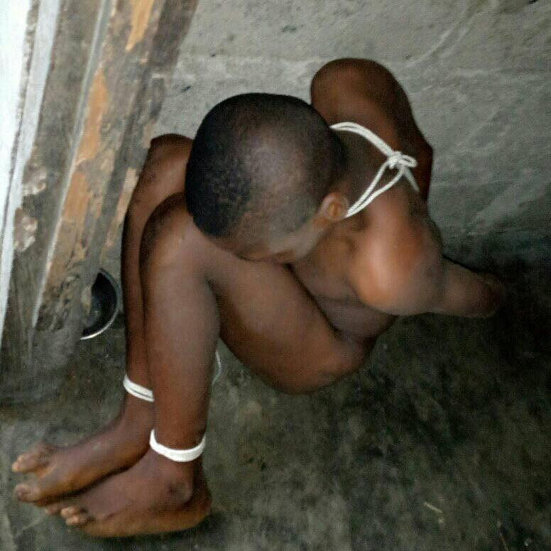 10-year-old boy allegedly starved, tortured, shackled by his father and stepmother in Akwa Ibom for being