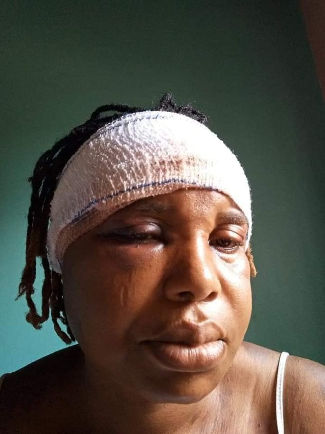 """I need your prayers"" - Nigerian woman cries out after her husband allegedly nearly beat her to death"