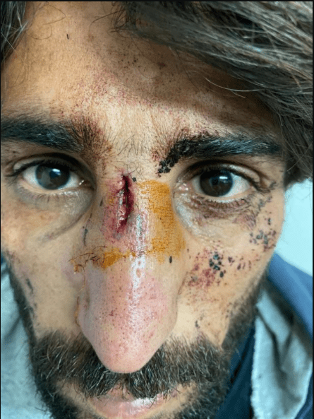 Distressing images of refugees who were