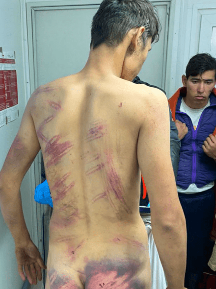 Distressing images of refugees who were 'tortured, beaten and forced to strip naked by Croatian police'