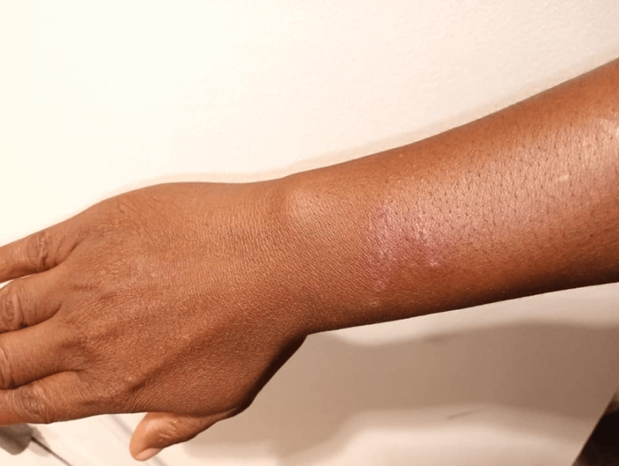 Human rights activist, Ms Usiobaifo suffers rashes and swelling on her wrist after a handshake from a man who tried to get her to drop a rape case