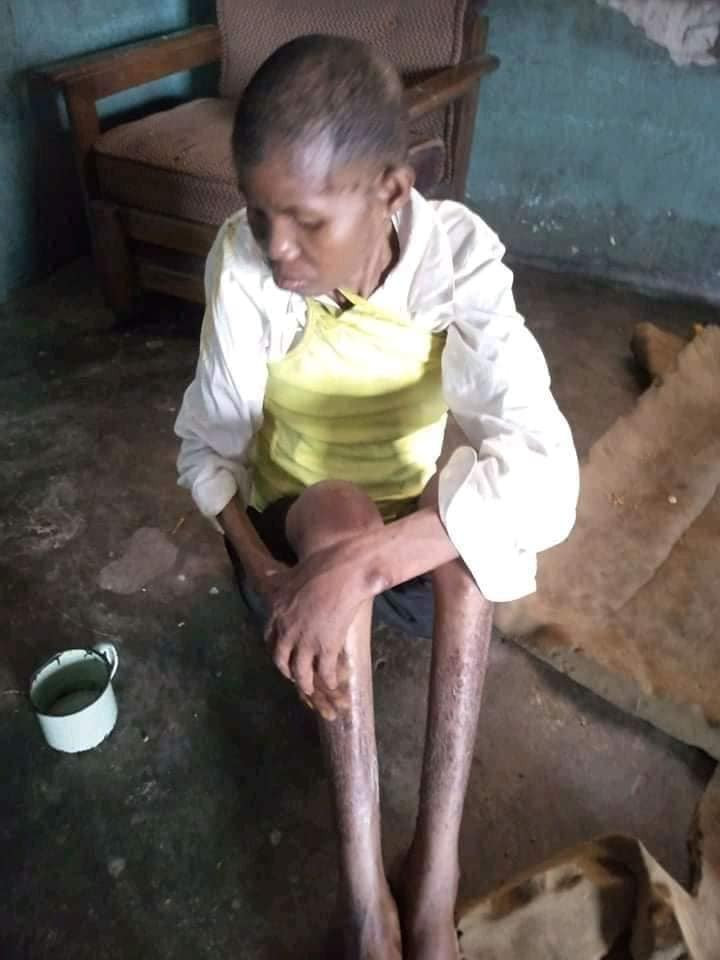 Lady accused of witchcraft and allegedly caged for three years by her  husband and his people