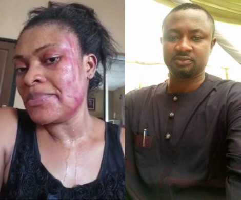 Channels TV to investigate reporter whose wife accused of domestic violence