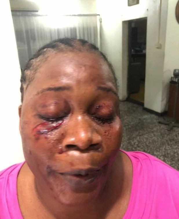 Woman allegedly disfigures her neighbour