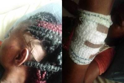 Suspected herdsmen allegedly attack female rice farmer in Ondo