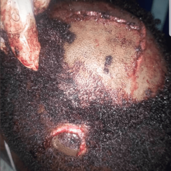 Caterer allegedly attacked by groom