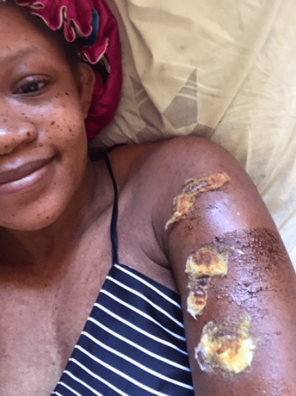 Woman fortunate to be alive narrates how she survived an accident caused by a reckless driver