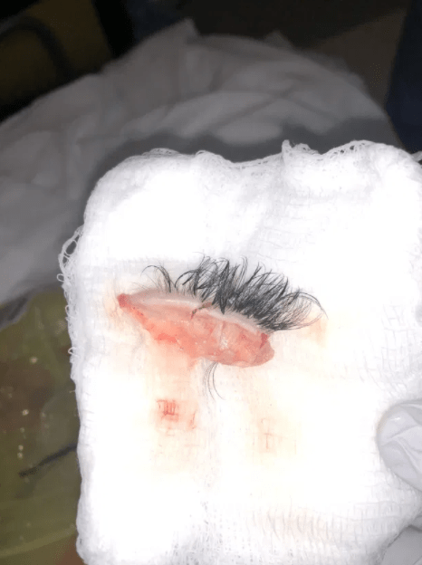 Chihuahua tears off woman's entire eyelid as she gets lashes done for her birthday (photos)