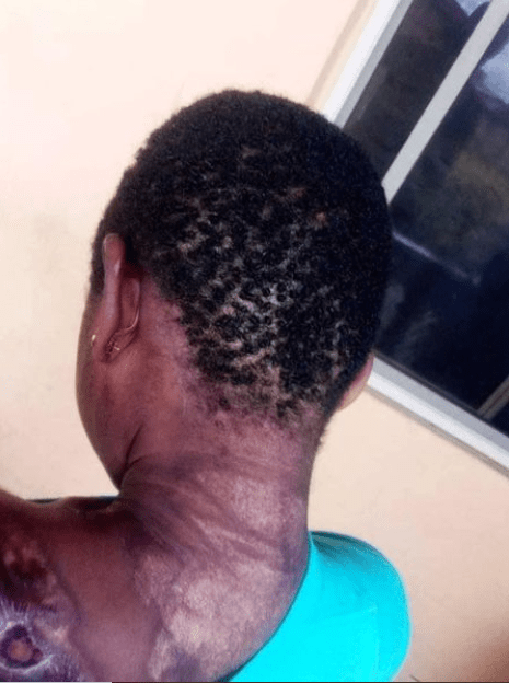 Police arrests woman accused of dousing 10-year-old maid with hot water mixed with pepper for breaking a plate (graphic photos)
