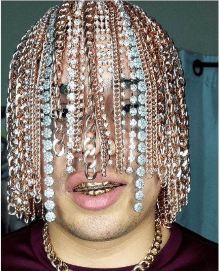 Rapper Dan Sur gets gold chains surgically implanted into his head (photos)