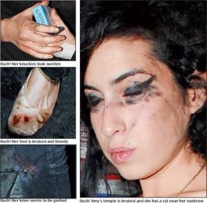 Amy Winehuse drugs