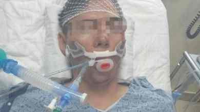 Photo of IMSS aclara caso de ventilador respiratorio