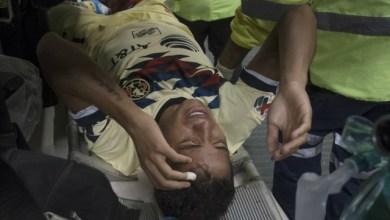 Photo of Así fue la terrible lesión de Gio dos Santos
