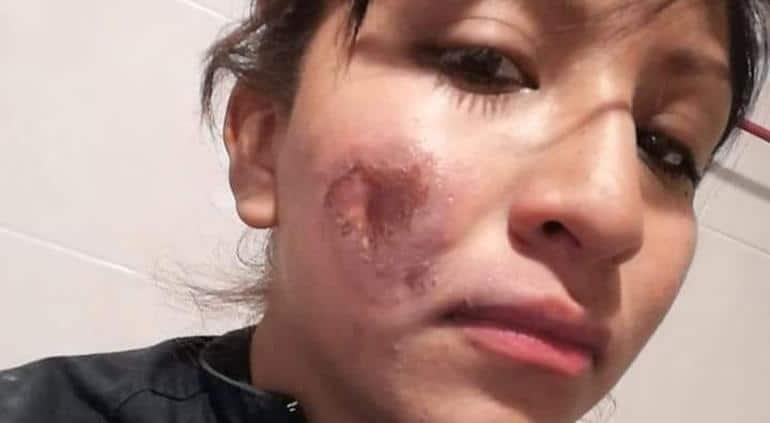 mujer policía quemada en marcha