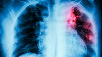Vive BC epidemia… de tuberculosis y sífilis