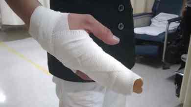 Photo of Niños golpean a enfermera por miedo al coronavirus; la dejan incapacitada