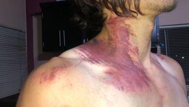 Photo of Suspenden a tres policías por abuso policíaco contra un joven