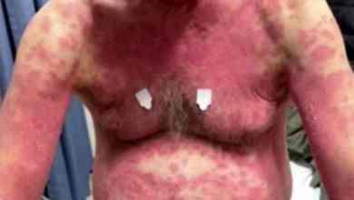 FOTO-Sufre-rara-erupción-en-la-piel-tras-recibir-vacuna-contra-Covid-19
