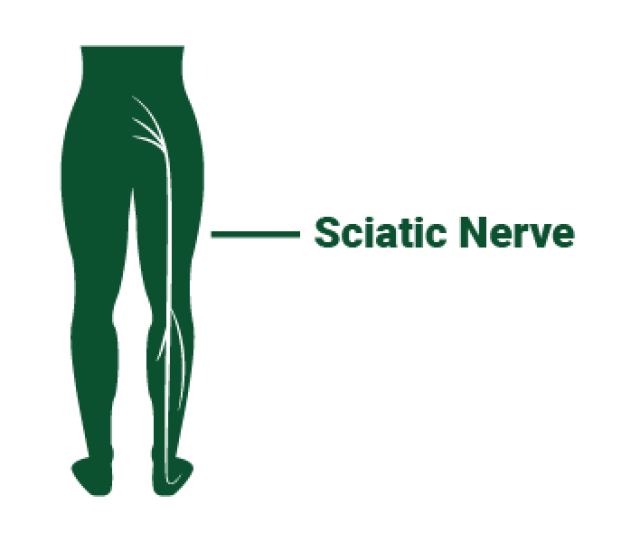 Diagram Showing The Sciatic Nerve Running From The Buttocks Down Into The Foot