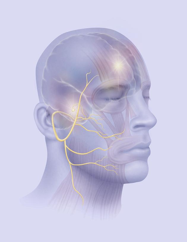 التهاب الأعصاب أصابع مشلولة ووجه بلا تعابير Alghad
