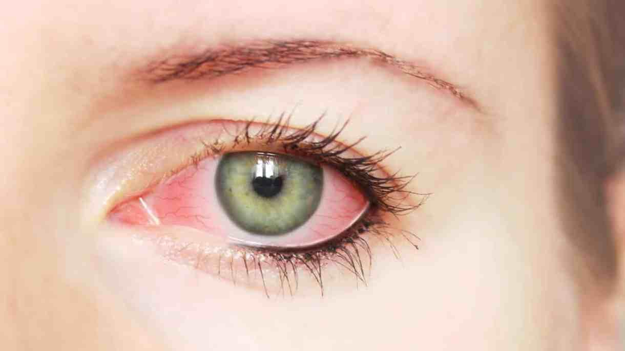 المكياج قد يسبب التهاب في العين Alghad