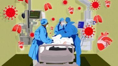 Photo of تجارب دوائية لمعرفة إمكانية منع حالات تجلط الدم المرتبطة بالمرض