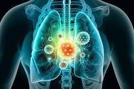 Photo of دواء يحدّ بنسبة 79% من إمكان اتخاذ الإصابة بكورونا شكلاً حاداً