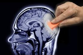 أظهرت دراسة أن تحفيز الكهرومغناطيسي للرأس يمكن أن يساعد في التغلب على اضطراب ما بعد الصدمة PTSD من خلال التخلص من الخوف من الذكريات السيئة