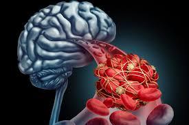 Photo of تعرف على السكتة الدماغية وعوامل درء خطرها!