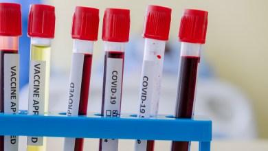 Photo of أصحاب فصيلة الدم O قد يواجهون خطرًا أقل في الإصابة بعدوى كورونا