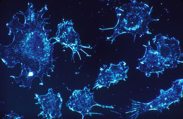 Cancer Gets the Artificial Intelligence Treatment