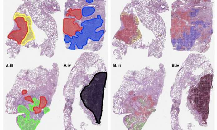 Machine Learning Model Can Grade Cancer Slides at Pathologist Level
