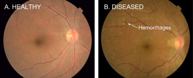 Google AI can detect diseases by examining eyes