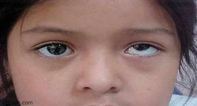 أسباب الإصابة بـكسل العين عند الأطفال