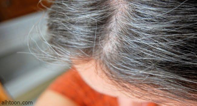 أسباب ظهور الشعر الأبيض عند الشباب