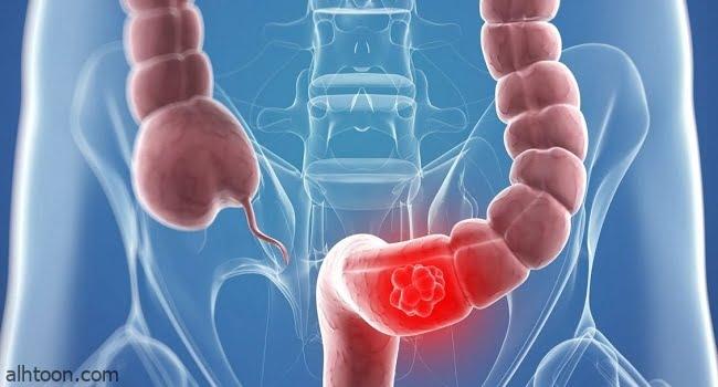 طرق لتجنب سرطان القولون
