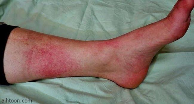 أعراض مرض الحمرة وطرق علاجه
