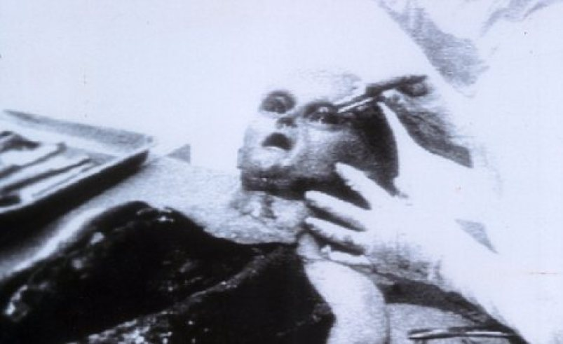 Autopsy: A dead alien is allegedly examined following the landing at Roswell. The photo was later shown to be a hoax.