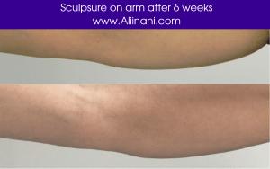 Sculpsure treatment on arm