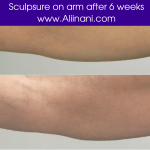 Sculpsure treatment on arm