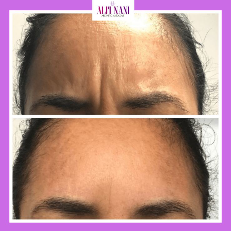 BOTOX/XEOMIN TO MINIMIZE FROWN LINES