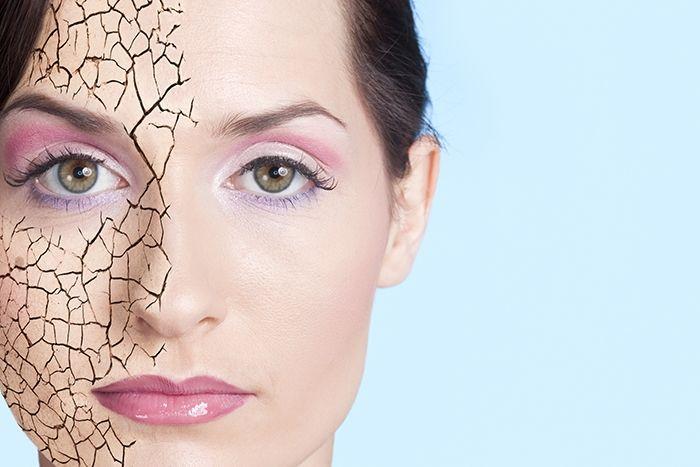 sequedad en la piel y acné