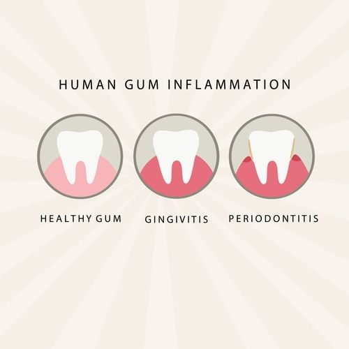 Salud bucodental Gingivitis Periodontitis