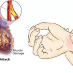 80% de los ataques cardíacos podrían prevenirse si todos supieran Estas 5 cosas simple y fácil !!!