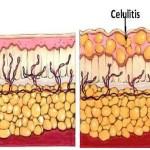 Dieta anticelulitis, que comer para eliminar grasa y tonificar