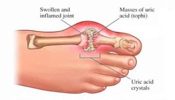 gota empeine del pie infusiones depurar acido urico que medico trata el acido urico