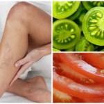 Cómo curar las venas varicosas con la ayuda de tomates