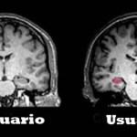Efectos a largo plazo de la marihuana en el cerebro finalmente son revelados!