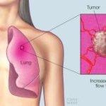 Nunca fumó y tiene cáncer de pulmón: ¿es posible?