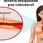 Como limpiar los Residuos de Colesterol y Destapar tus Arterias con esta SÚPER BOMBA casera…